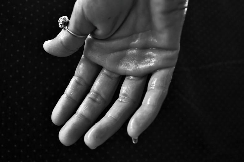 手汗改善する方法